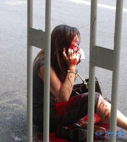 遭割鼻央视女记者图片,女记者被割鼻真相和原因,当街割鼻是谁?