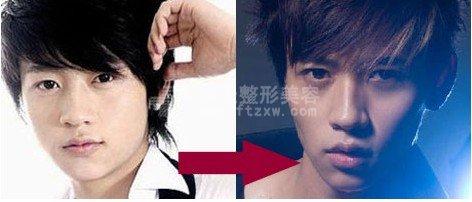 魏晨整容前后对比的照片(图)
