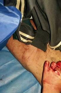 五岁宝宝生殖器标准_6岁男童生殖器官被砍断原因,女子因睡觉被吵砍伤6岁男童(2)
