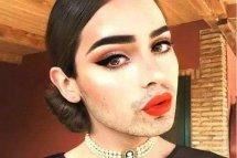 女生长胡子怎么办 女生长胡子去除解决的小妙招 用牙膏能去掉吗