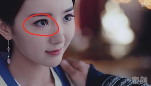 毛晓彤的眼角怎么了疤怎么回事好明显?毛晓彤眼角是天生的眼瘘吗